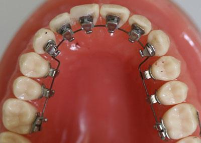 Dental Braces Amp Orthodontic Treatment Teeth Braces Dr