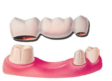 dental-crown-and-bridge