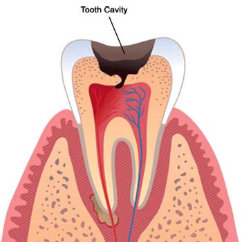 tooth-cavity
