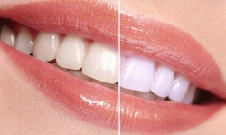 Teeth Whitening Treatments Cost Of Teeth Bleaching In India Dr