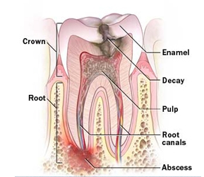 Root Canal Treatment India, Root Canal Surgery Cost