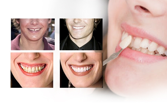 porcelain-dental-veneers